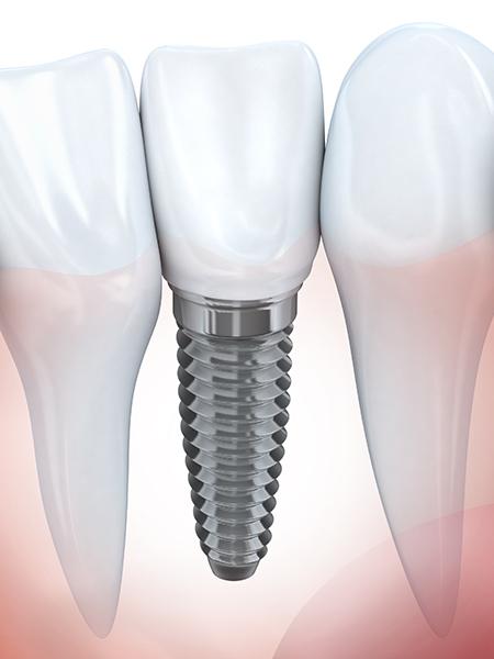 Implant dentaire Servon - Soins