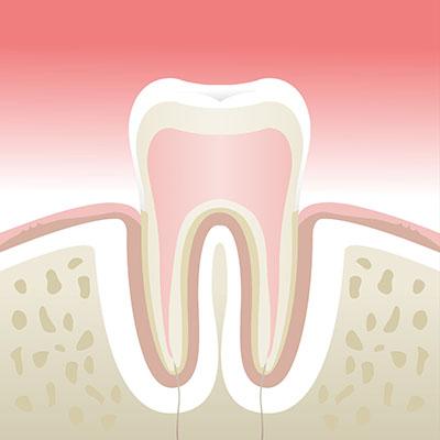 Maladie-parodontale-stade-1
