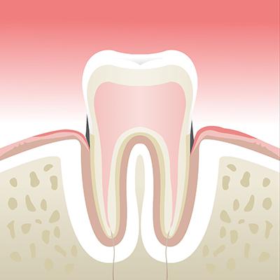 Maladie-parodontale-stade-2
