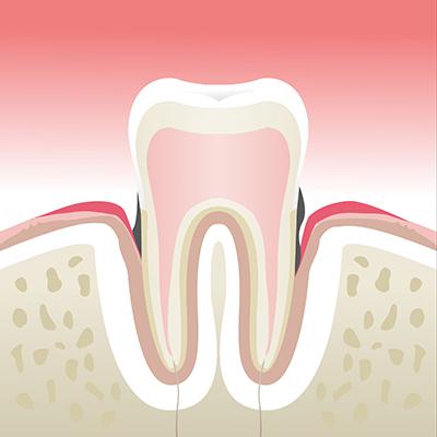 Maladie-parodontale-stade-3
