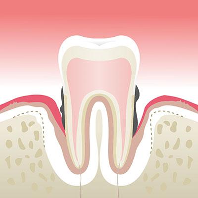 Maladie-parodontale-stade-4